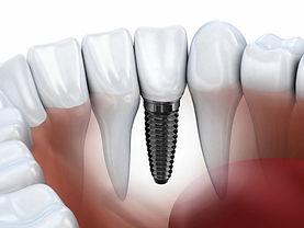 Удаление зубов, Имплантация