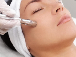 What is Microdermabrasion?  Is it worth it?