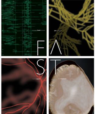 F.A.S.T. Stroke Detection