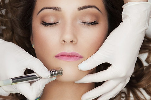 Microdermabrasion Treatment Package of 3
