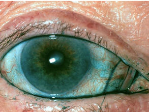 Inovacije u dijagnostici i terapiji suvog oka