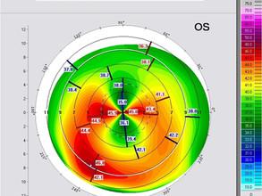 Prikaz slucaja simultane fotorefraktivne keratektomije i kros-linkinga kod pacijenta sa progresivnom