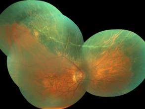Primena elektofizioloske dijagnostike u oftalmologiji (prikazi slucajeva)