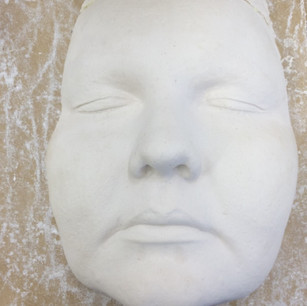 Plaster cast taken from alginate.