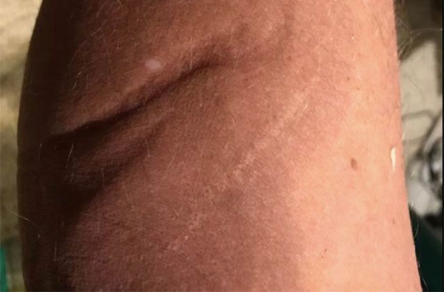Edmonds' aliens-inflicted wounds.