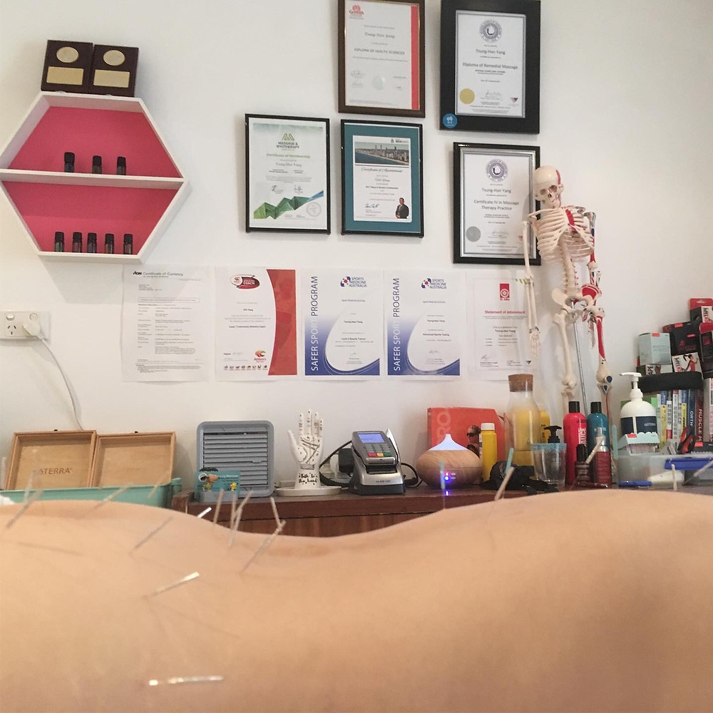 Heal Young Massage Dry Needling Alice Springs