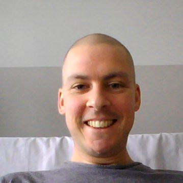 Image of Paul during cancer treatment