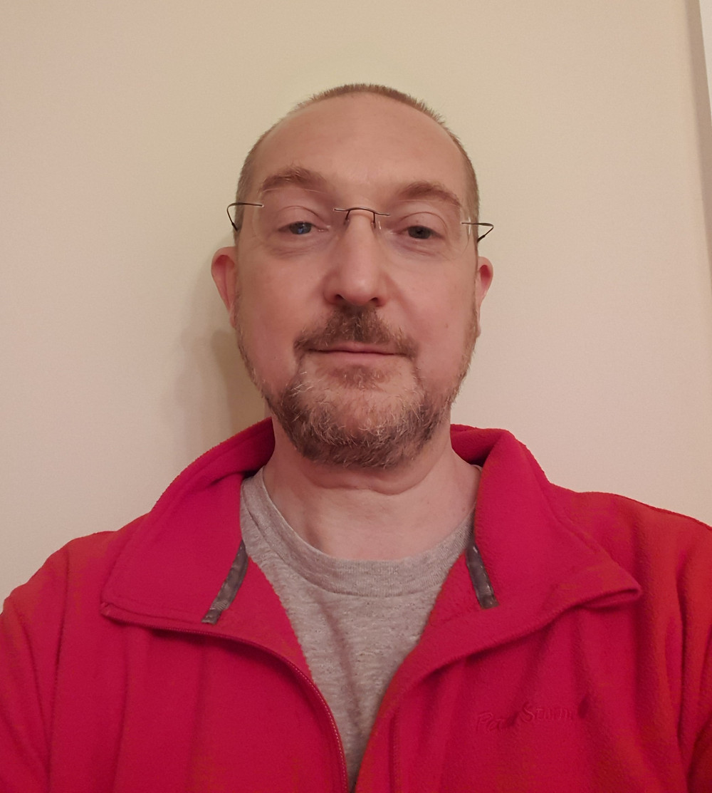 Image of Charlie Elvin with chemo-cropped hair