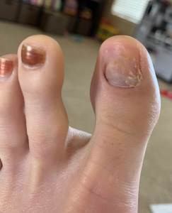 Post chemotherapy toenail which has fallen off
