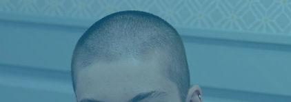 Hairloss_edited.jpg