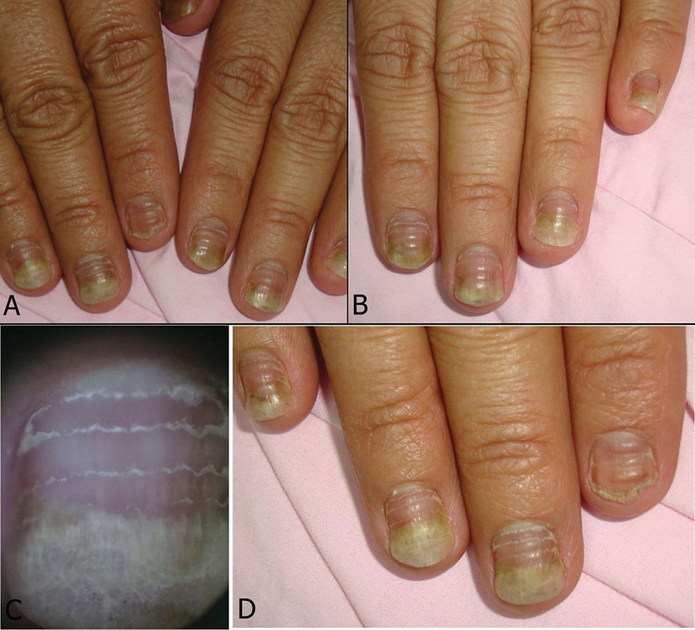 Image showing nail changes due to chemotherapy treatment