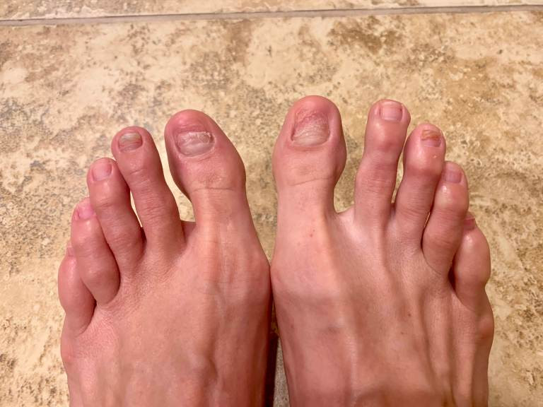 Post chemotherapy toe nails