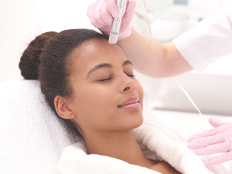 Microneedle Collagen Induction