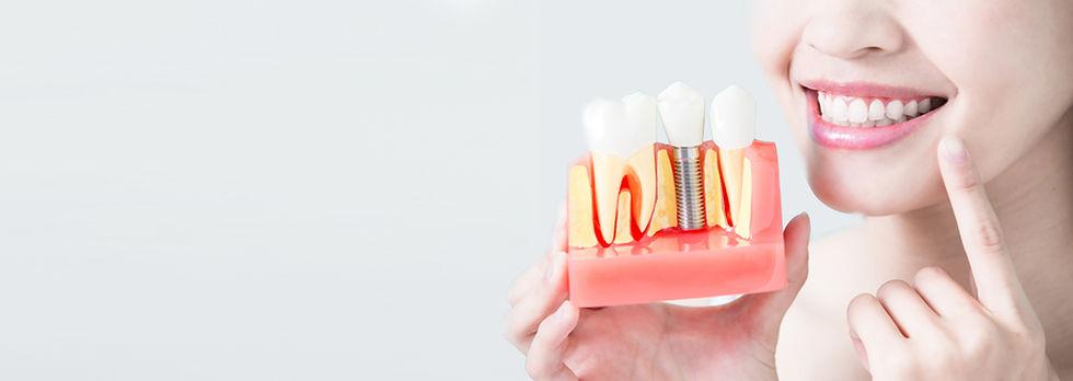 Banner_Implant.jpg