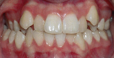 Orthodontic patient 1 before.jpg