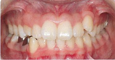 Orthodontic patient 3 before.jpg