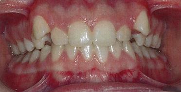 Orthodontic patient 2 before.jpg