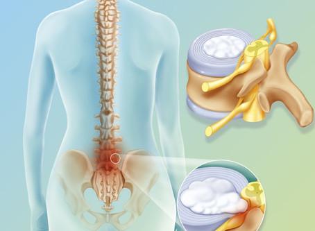 Rimedio naturale per l'ernia al disco con la chiropratica!