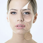 myclinique tratamentos rosto