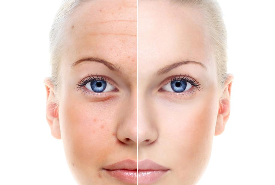 mylinique nutricao diagnostico pele