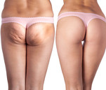 myclinique gluteoplastia