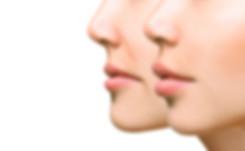 myclinique mentoplastia