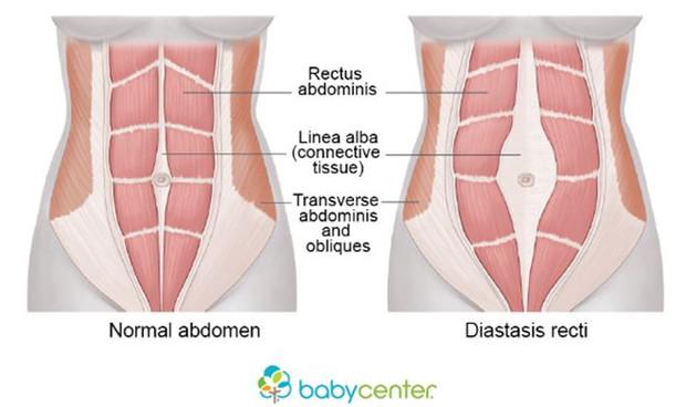 คุณแม่แชร์ประสบการณ์ :: ฝ่าวิกฤตการณ์ กู้ร่างจากภาวะกล้ามเนื้อหน้าท้องแยกหลังคลอด (Diastasis Recti o