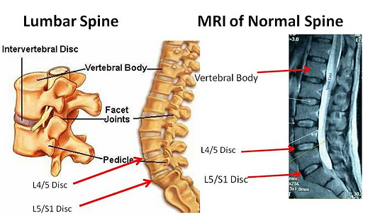 Lower Back and Sciatica Pic 4.png