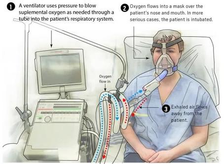COVID-19 Response: Stephens County Hospital facility and ventilator capacity