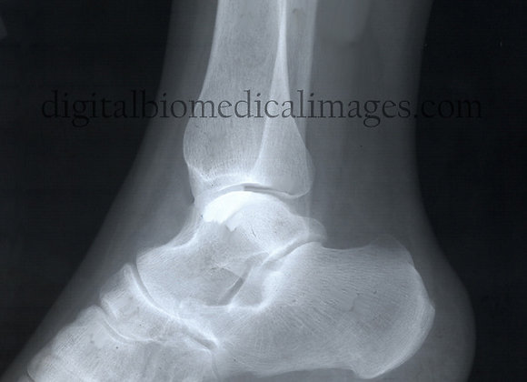 XRA_015: Lateral view of the ankle