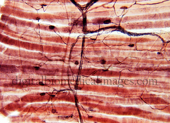 NER_048: Neuromuscular Junction 100X