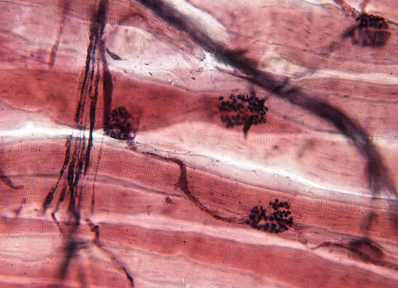000179 Neuromuscular Junction 40x