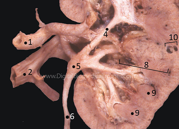 HD000321 15-4 A Sagittal Section of Human Kidney