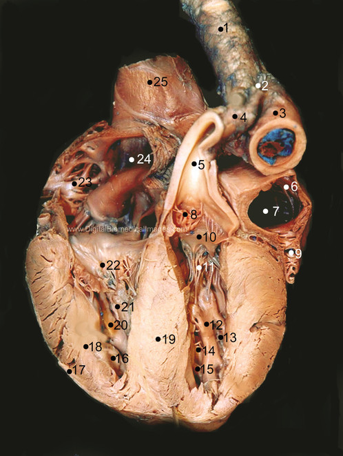 FP000407 9-12 Frontal section of the fetal pig heart displaying ...