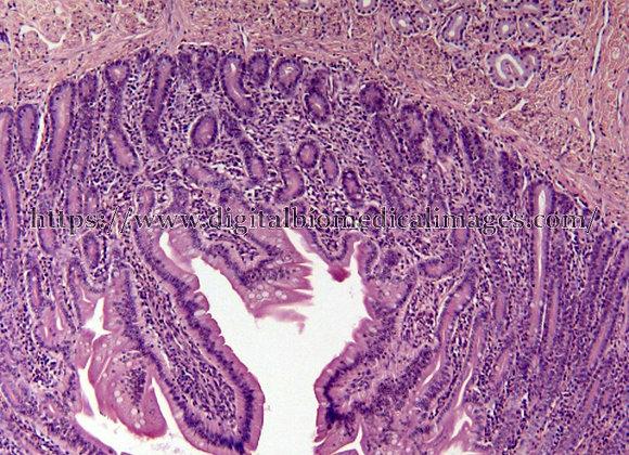 Digest. 031 Small Intestine 10x
