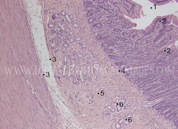 CDI_022: C.S. of Small Intestine Body Wall