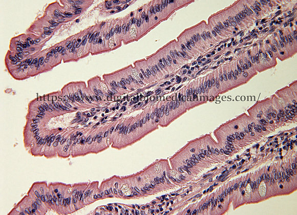 Digest. 116 Villi small intestine 40X