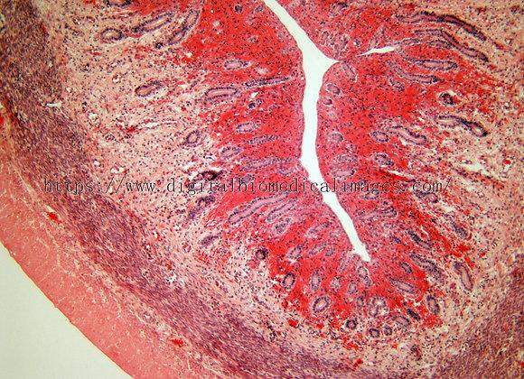 Female Rep. 040 Uterus 100x