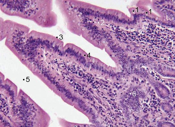 CDI_026: Villi in Small Intestine
