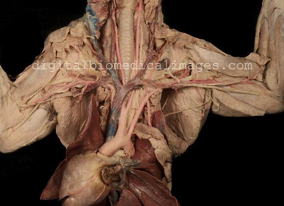 Cat Cardiovascular (CCA)_001