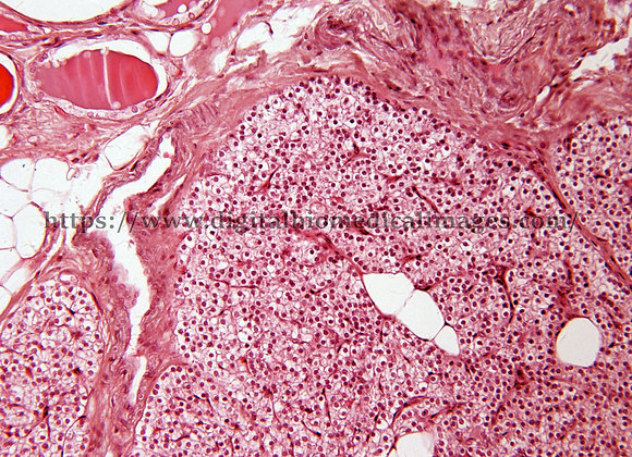 Endo. 028 Parathyroid gland 20x