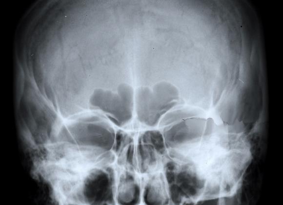 XRA_014: Anterior aspect of the skull