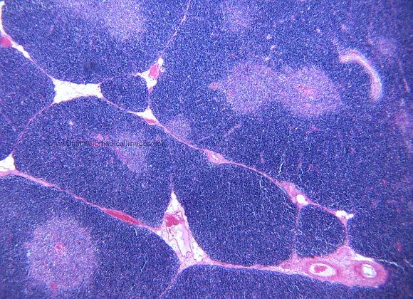 END_004: Thymus 40X