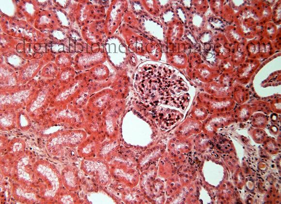 URI_002: Glomerulus (Renal Corpuscle) aff. Eff. 200X