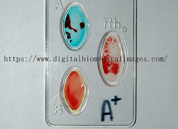 Cardio_008 Blood Type
