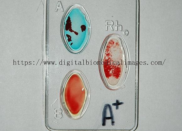 Cardio_009 Blood Type