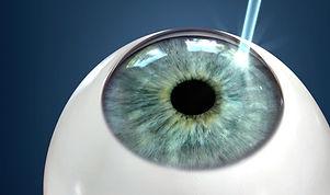 laser-surgery.jpg
