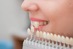 Whitening ฟอกสีฟัน ขาว