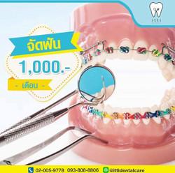 จัดฟัน 1000 บาทต่อเดือน
