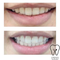 TOOTH whitening , ฟอกสีฟันขาว